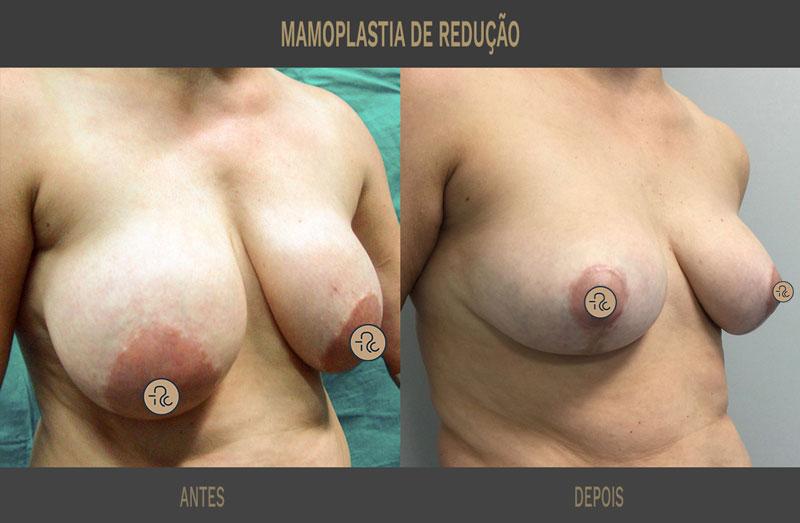mamoplastia de redução antes e depois caso 345 02