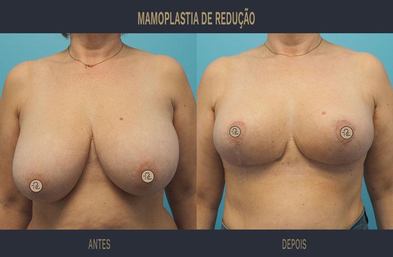 mamoplastia redutora antes e depois caso 560 02