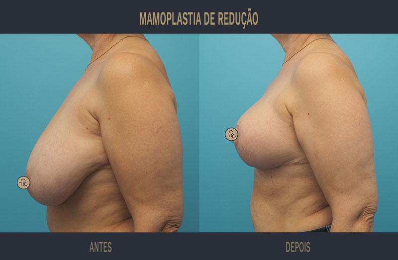 mamoplastia de redução antes e depois caso 465