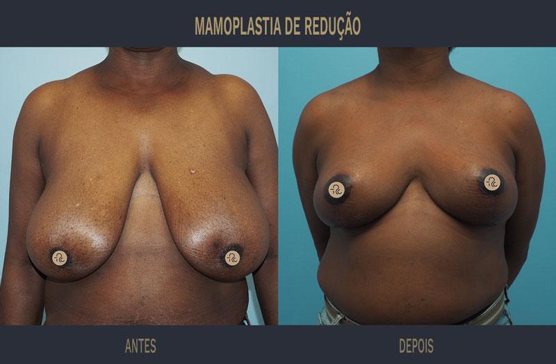 mamoplastia redutora antes e depois caso 560