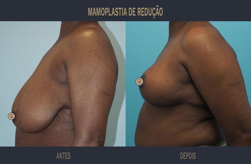 mamoplastia redutora antes e depois caso 560 03