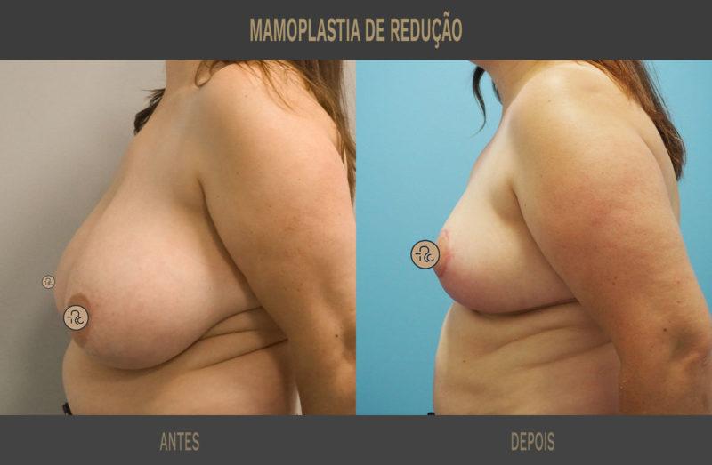 Mamoplastia de redução Coimbra Lisboa 02