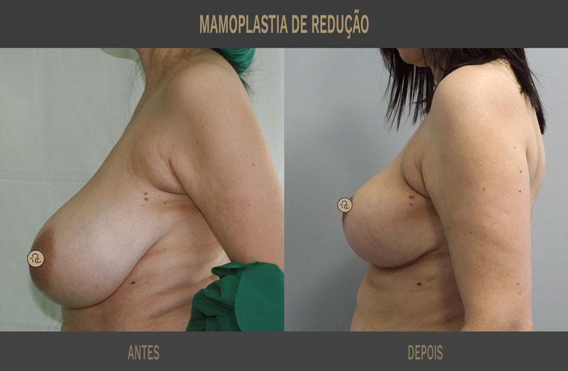 mamoplastia redutora antes e depois caso 702 2
