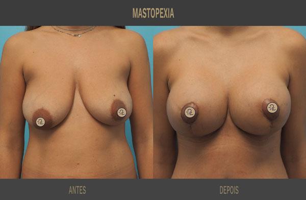 Mastopexia com implantes Ricardo Carvalho 01