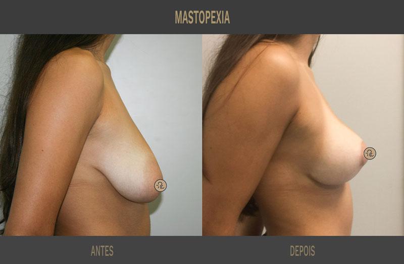 levantamento do peito antes e depois sem proteses _01