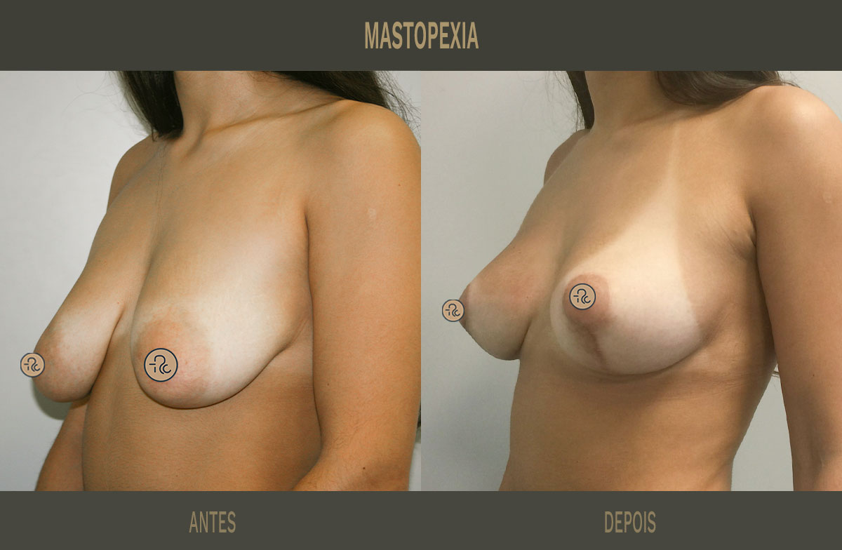 levantamento do peito antes e depois sem proteses _02